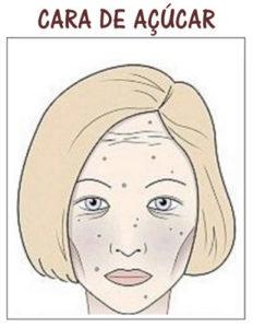 Cara de açúcar, estética facial em lisboa SP Clinic. Efeitos dos açúcar na pele do rosto