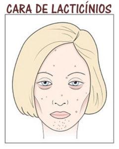 Cara de lacticínios, estética facial em lisboa SP Clinic. Efeitos dos lacticínios na pele do rosto
